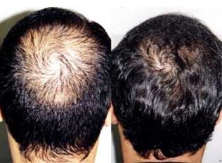 queda de cabelo o que fazer